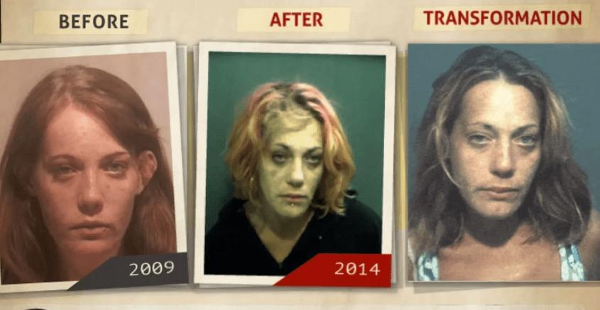 恐ろしい。。ドラッグ中毒の人の顔の変化をタイムラプス映像にしてみたら。。